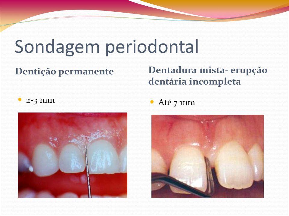 Sondagem periodontal Dentição permanente Dentadura mista- erupção dentária incompleta 2-3 mm Até 7 mm