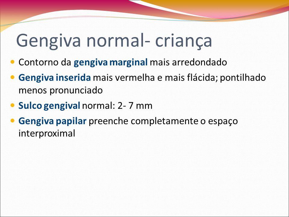 Semelhante ao do adulto jovem Cor vermelho-róseo Gengiva inserida casca de laranja Papila gengival preenche o espaço interproximal Gengiva normal no adolescente