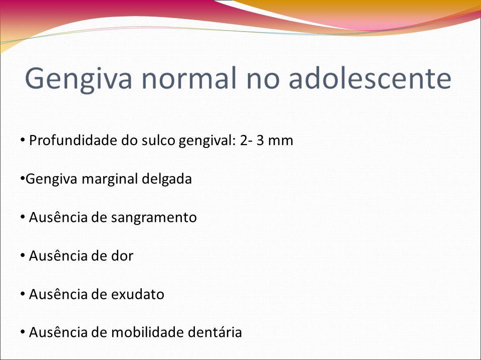 Profundidade do sulco gengival: 2- 3 mm Gengiva marginal delgada Ausência de sangramento Ausência de dor Ausência de exudato Ausência de mobilidade dentária