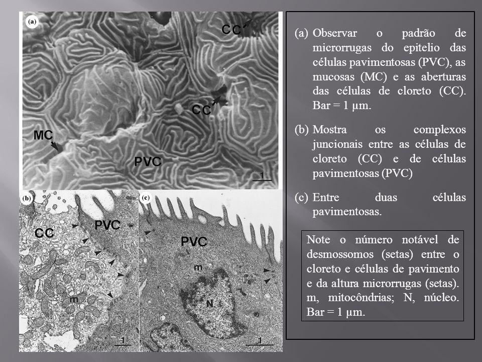 O epitélio de transição entre as lamelas secundárias apresentam espaços e curtas microrrugas na superfície apical da membrana das células pavimentosas.