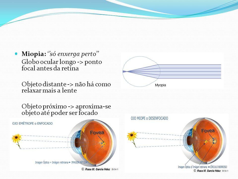 Miopia: só enxerga perto Globo ocular longo -> ponto focal antes da retina Objeto distante -> não há como relaxar mais a lente Objeto próximo -> aprox