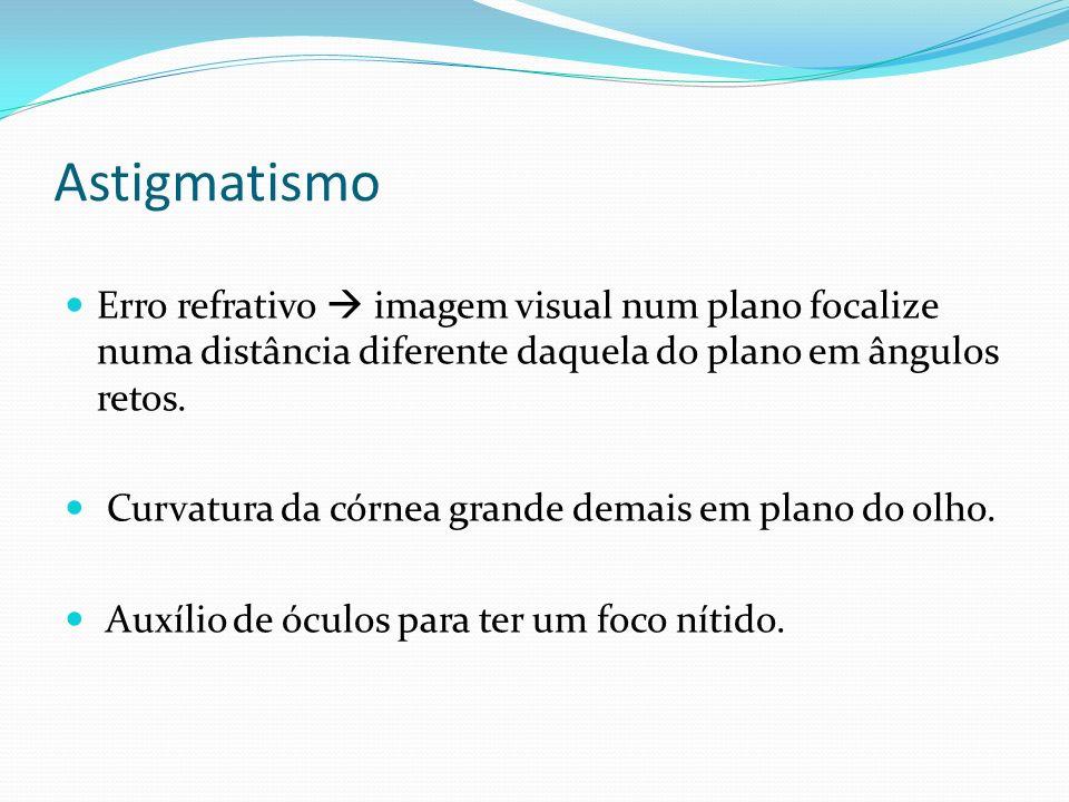 Astigmatismo Erro refrativo imagem visual num plano focalize numa distância diferente daquela do plano em ângulos retos. Curvatura da córnea grande de