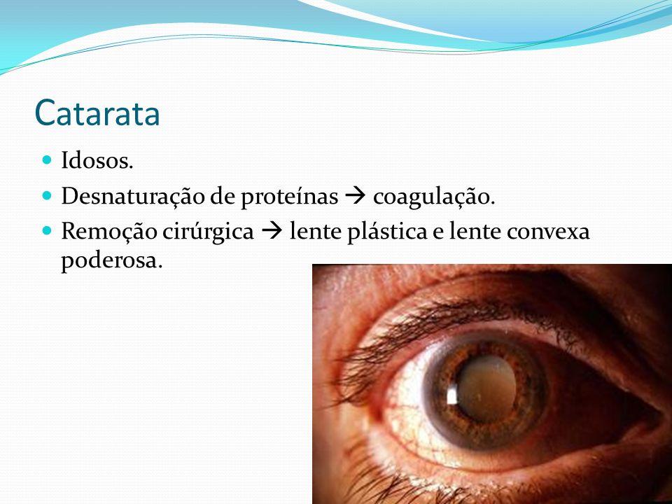 C atarata Idosos. Desnaturação de proteínas coagulação. Remoção cirúrgica lente plástica e lente convexa poderosa.