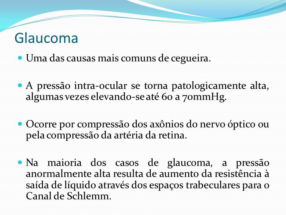 Glaucoma Uma das causas mais comuns de cegueira. A pressão intra-ocular se torna patologicamente alta, algumas vezes elevando-se até 60 a 70mmHg. Ocor