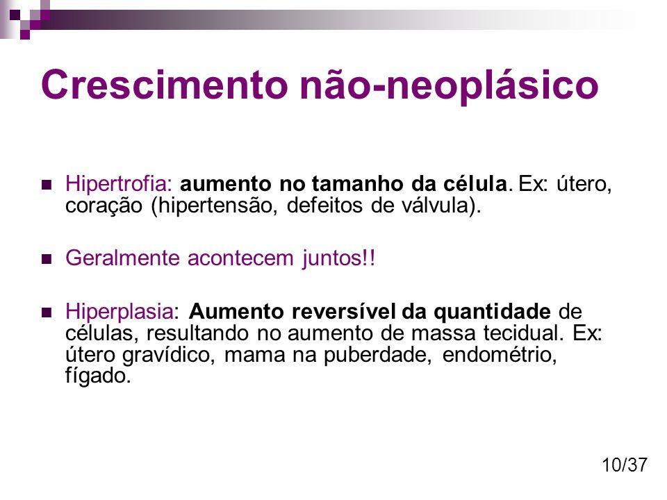 Crescimento não-neoplásico Hipertrofia: aumento no tamanho da célula. Ex: útero, coração (hipertensão, defeitos de válvula). Geralmente acontecem junt