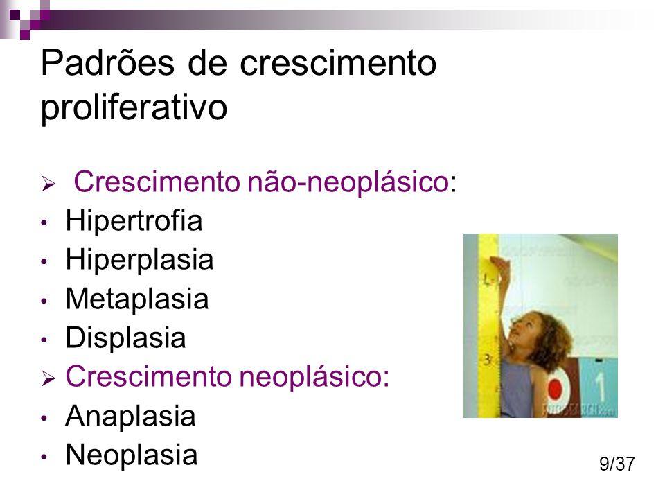 Padrões de crescimento proliferativo Crescimento não-neoplásico: Hipertrofia Hiperplasia Metaplasia Displasia Crescimento neoplásico: Anaplasia Neopla