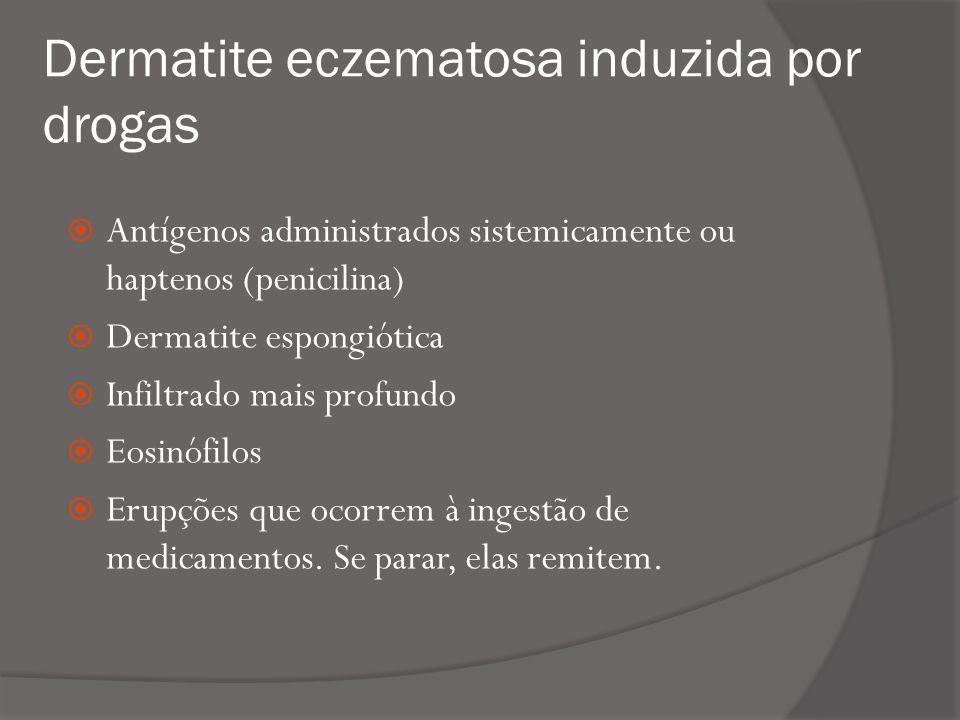 Dermatite eczematosa induzida por drogas Antígenos administrados sistemicamente ou haptenos (penicilina) Dermatite espongiótica Infiltrado mais profundo Eosinófilos Erupções que ocorrem à ingestão de medicamentos.
