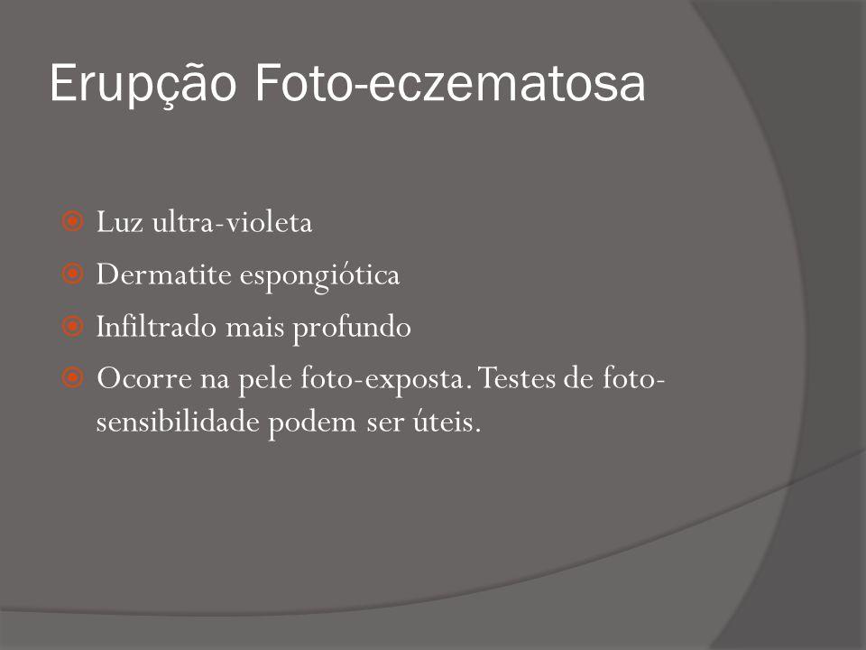 Erupção Foto-eczematosa Luz ultra-violeta Dermatite espongiótica Infiltrado mais profundo Ocorre na pele foto-exposta.