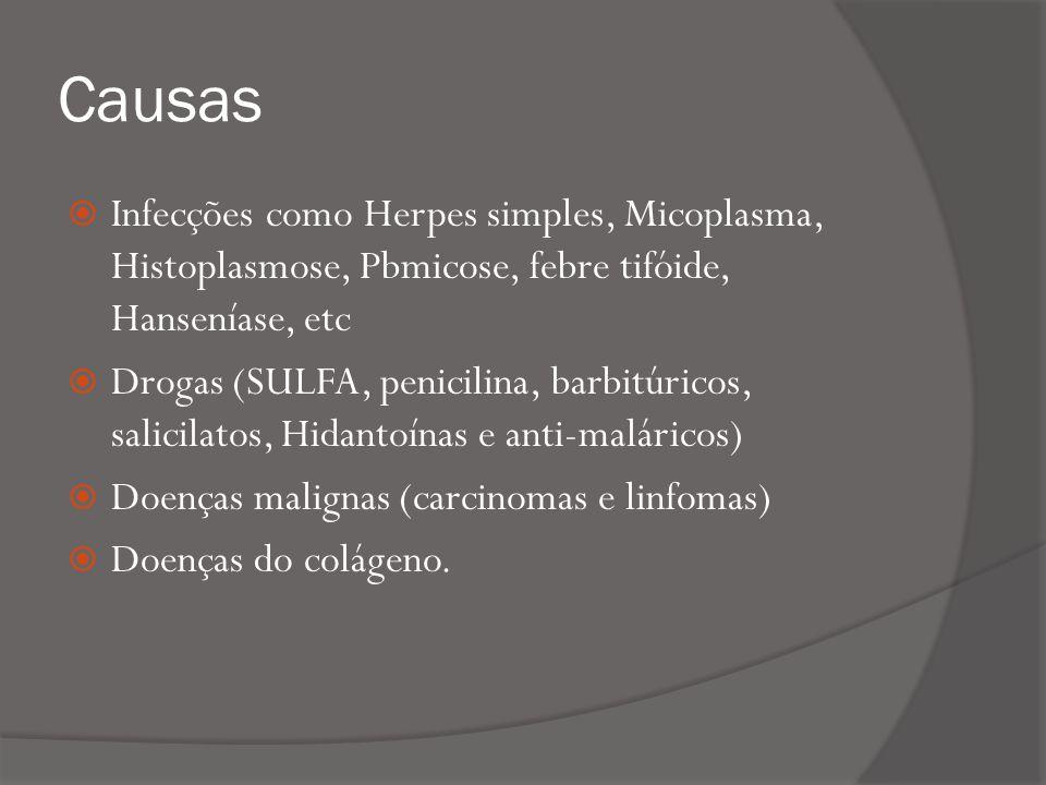 Causas Infecções como Herpes simples, Micoplasma, Histoplasmose, Pbmicose, febre tifóide, Hanseníase, etc Drogas (SULFA, penicilina, barbitúricos, salicilatos, Hidantoínas e anti-maláricos) Doenças malignas (carcinomas e linfomas) Doenças do colágeno.