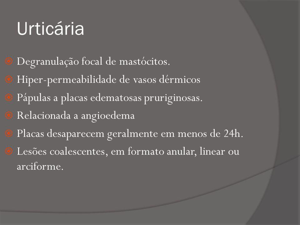 Dermatite irritante primária Trauma repetido (atrito) Dermatite espongiótica quando estágios iniciais Hiperplasia em estágios avançados.