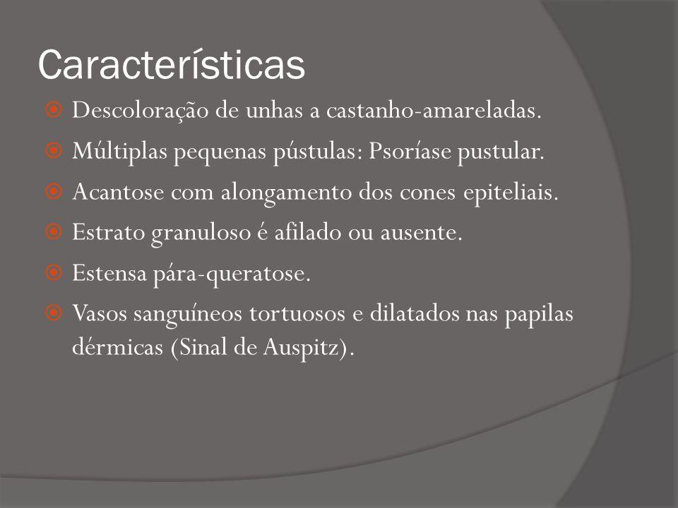 Características Descoloração de unhas a castanho-amareladas.