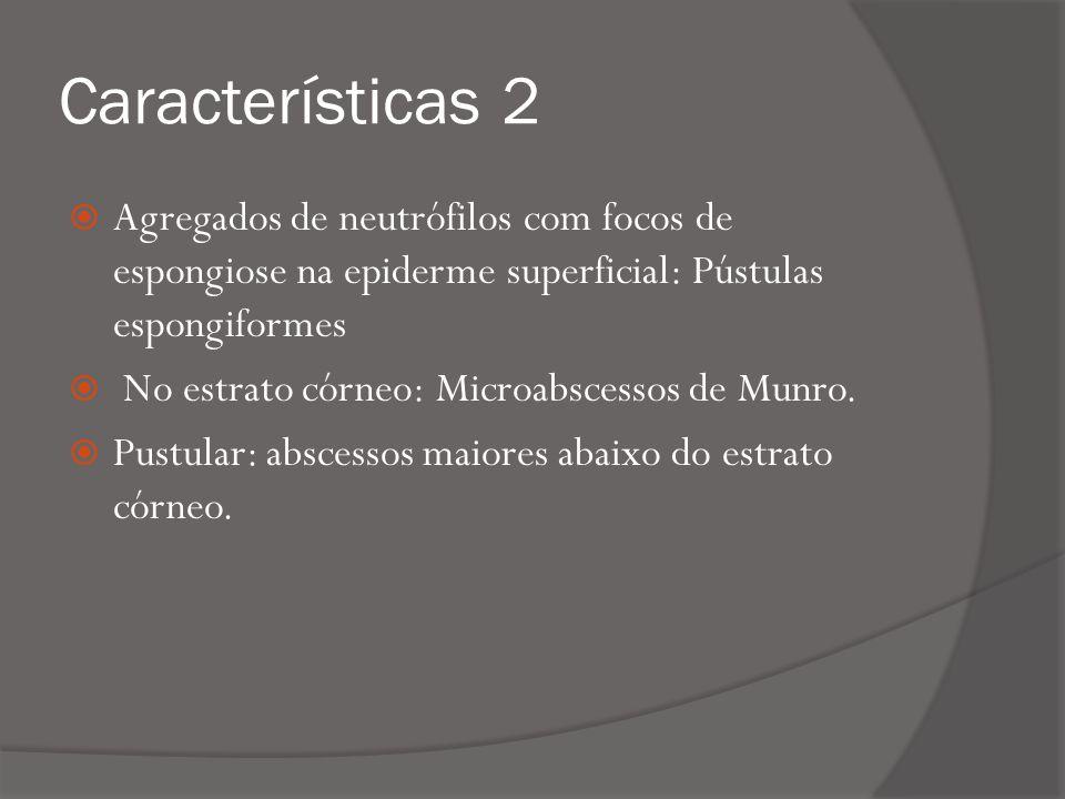 Características 2 Agregados de neutrófilos com focos de espongiose na epiderme superficial: Pústulas espongiformes No estrato córneo: Microabscessos de Munro.