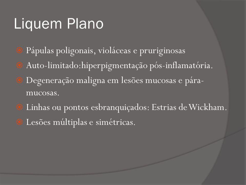 Liquem Plano Pápulas poligonais, violáceas e pruriginosas Auto-limitado:hiperpigmentação pós-inflamatória.