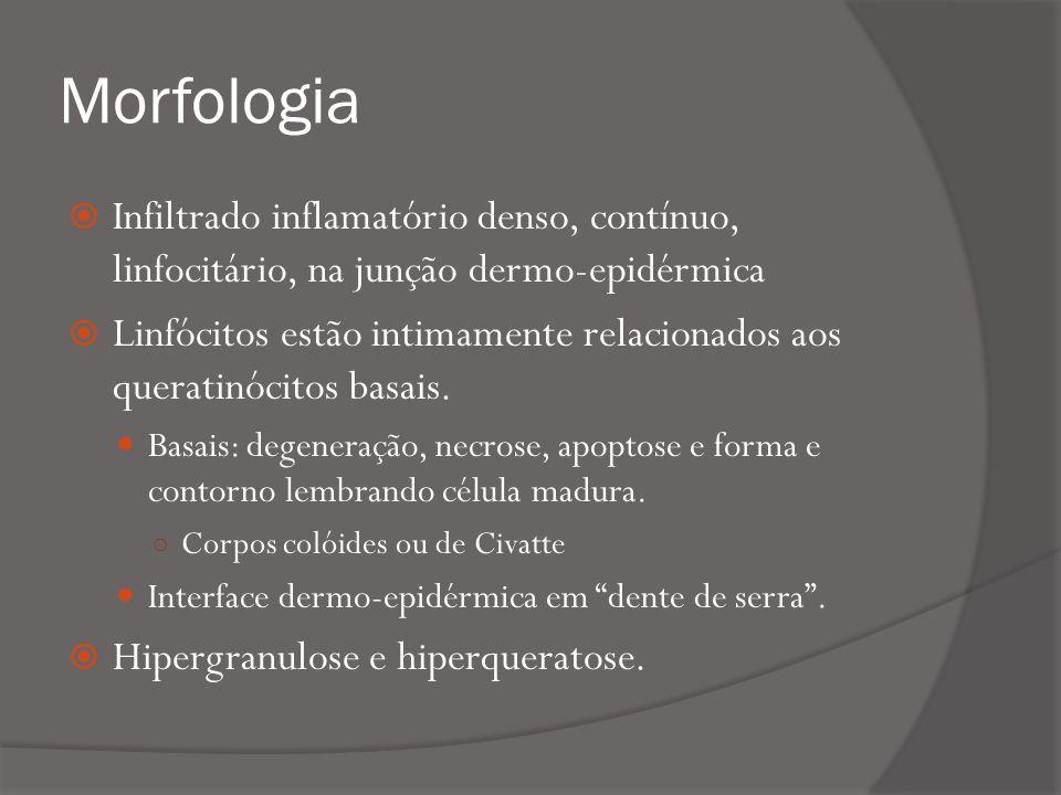 Morfologia Infiltrado inflamatório denso, contínuo, linfocitário, na junção dermo-epidérmica Linfócitos estão intimamente relacionados aos queratinócitos basais.