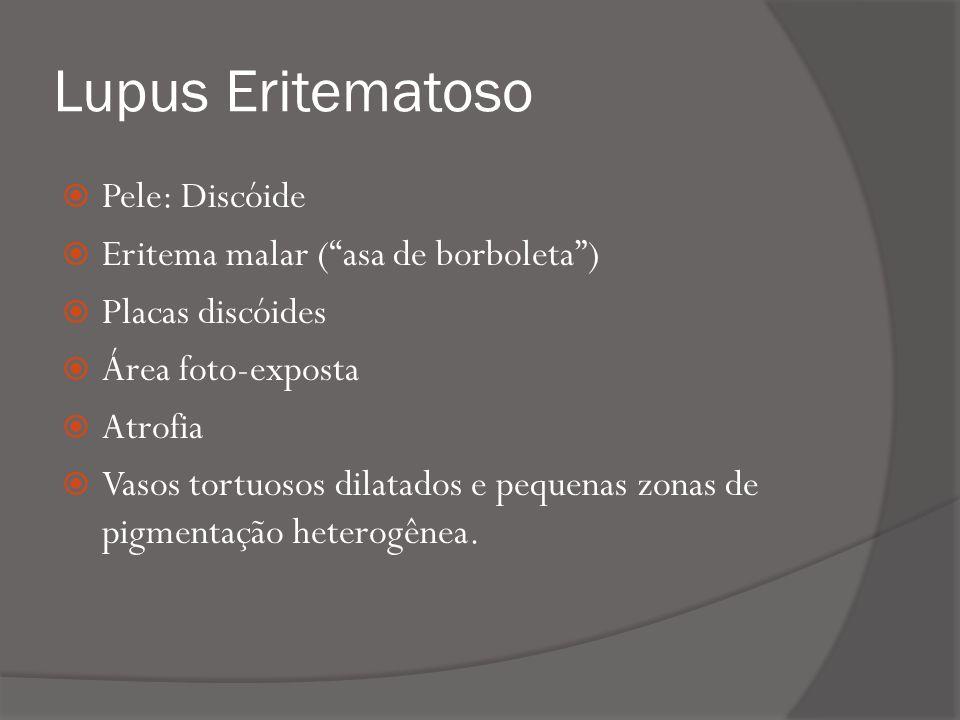 Lupus Eritematoso Pele: Discóide Eritema malar (asa de borboleta) Placas discóides Área foto-exposta Atrofia Vasos tortuosos dilatados e pequenas zonas de pigmentação heterogênea.