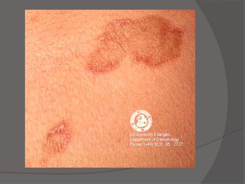 Dermatite Eczematosa Aguda Termo clínico Lesões pápulo-vesiculares, crostosas Dermatite espongiótica Cronificação
