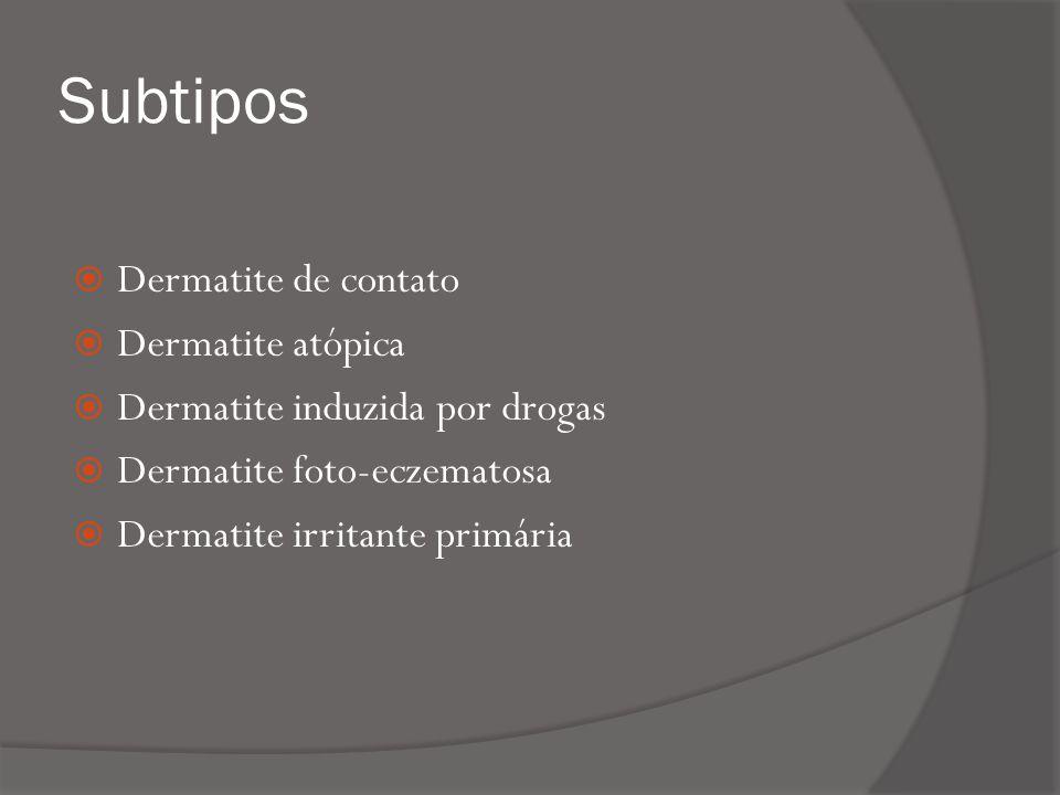 Subtipos Dermatite de contato Dermatite atópica Dermatite induzida por drogas Dermatite foto-eczematosa Dermatite irritante primária