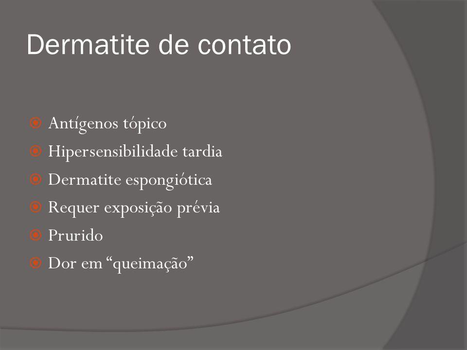 Dermatite de contato Antígenos tópico Hipersensibilidade tardia Dermatite espongiótica Requer exposição prévia Prurido Dor em queimação
