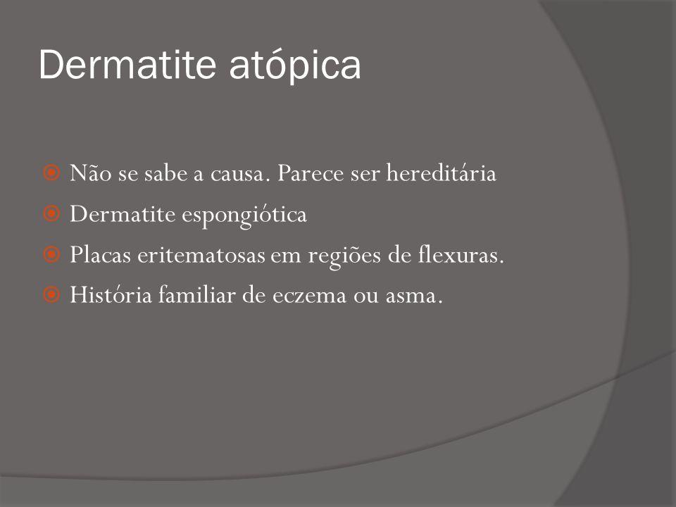 Dermatite atópica Não se sabe a causa.