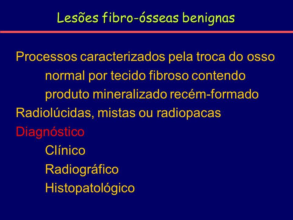 Lesões fibro-ósseas benignas Processos caracterizados pela troca do osso normal por tecido fibroso contendo produto mineralizado recém-formado Radiolú