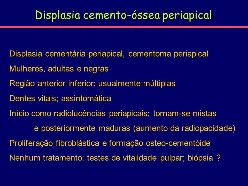 Displasia cemento-óssea periapical Displasia cementária periapical, cementoma periapical Mulheres, adultas e negras Região anterior inferior; usualmen