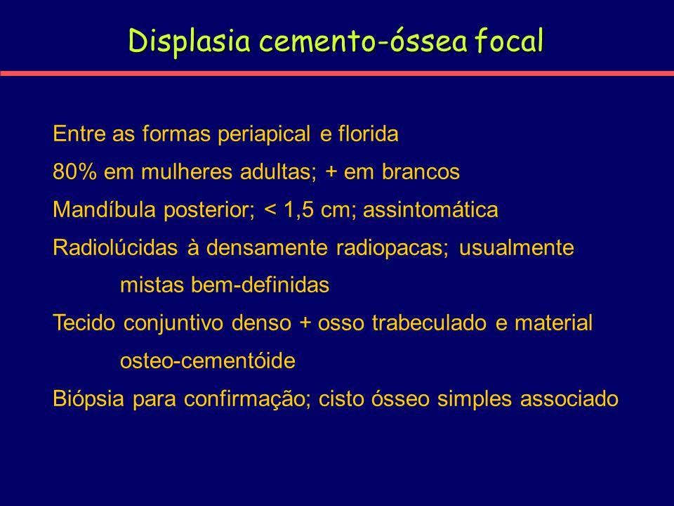 Displasia cemento-óssea focal Entre as formas periapical e florida 80% em mulheres adultas; + em brancos Mandíbula posterior; < 1,5 cm; assintomática