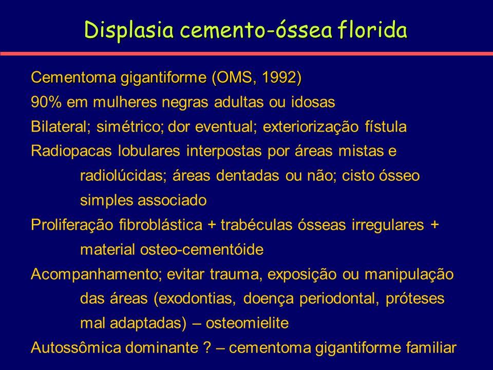 Displasia cemento-óssea florida Cementoma gigantiforme (OMS, 1992) 90% em mulheres negras adultas ou idosas Bilateral; simétrico; dor eventual; exteri