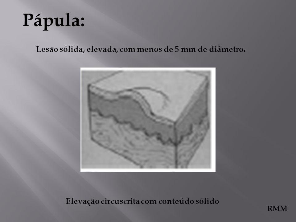 Pápula: Lesão sólida, elevada, com menos de 5 mm de diâmetro. RMM Elevação circuscrita com conteúdo sólido