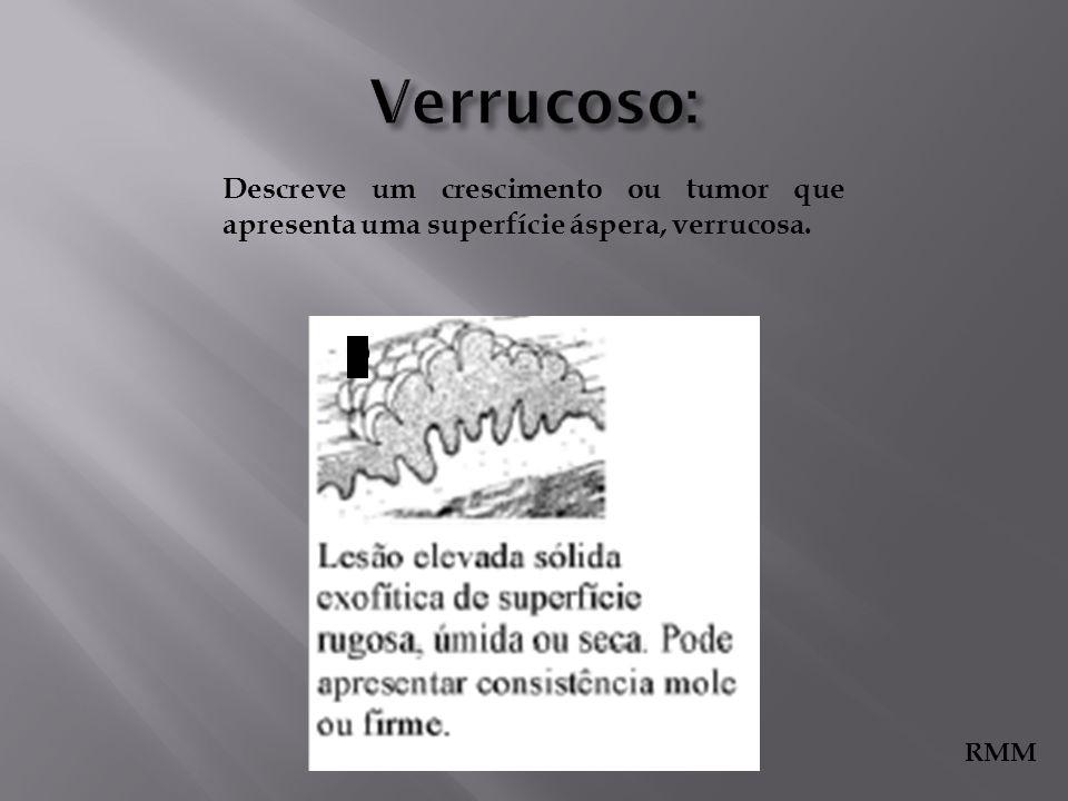 Descreve um crescimento ou tumor que apresenta uma superfície áspera, verrucosa. 9 RMM