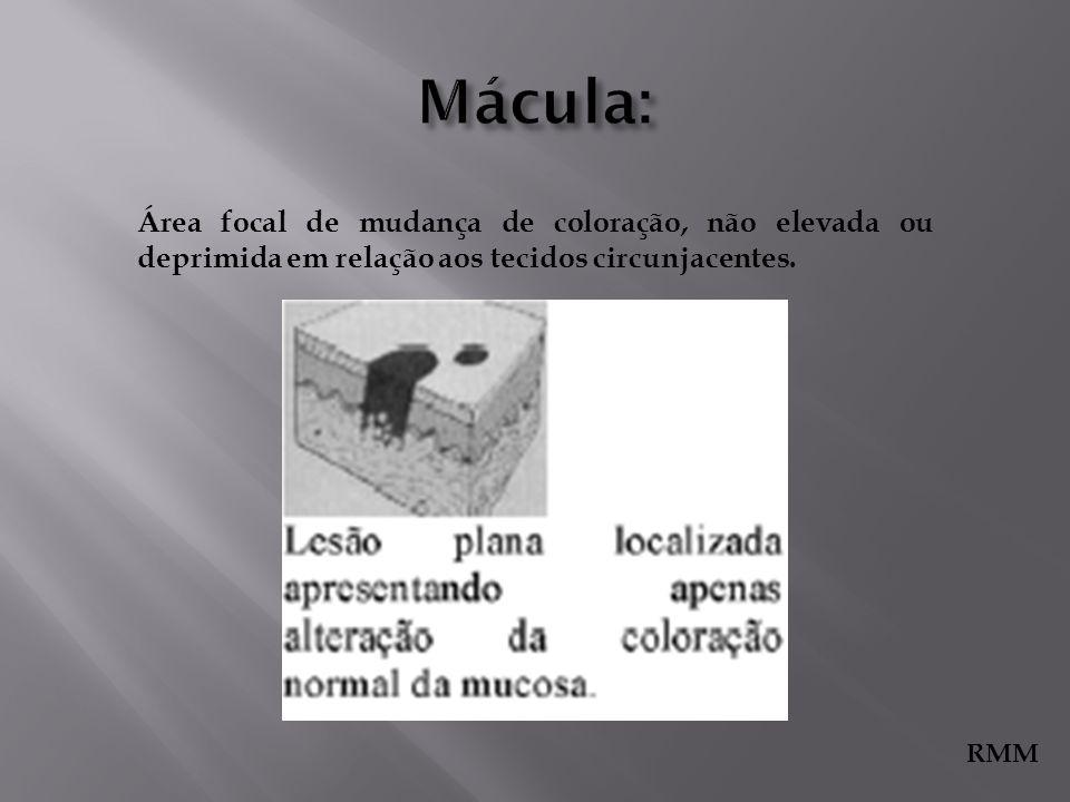 Área focal de mudança de coloração, não elevada ou deprimida em relação aos tecidos circunjacentes. RMM