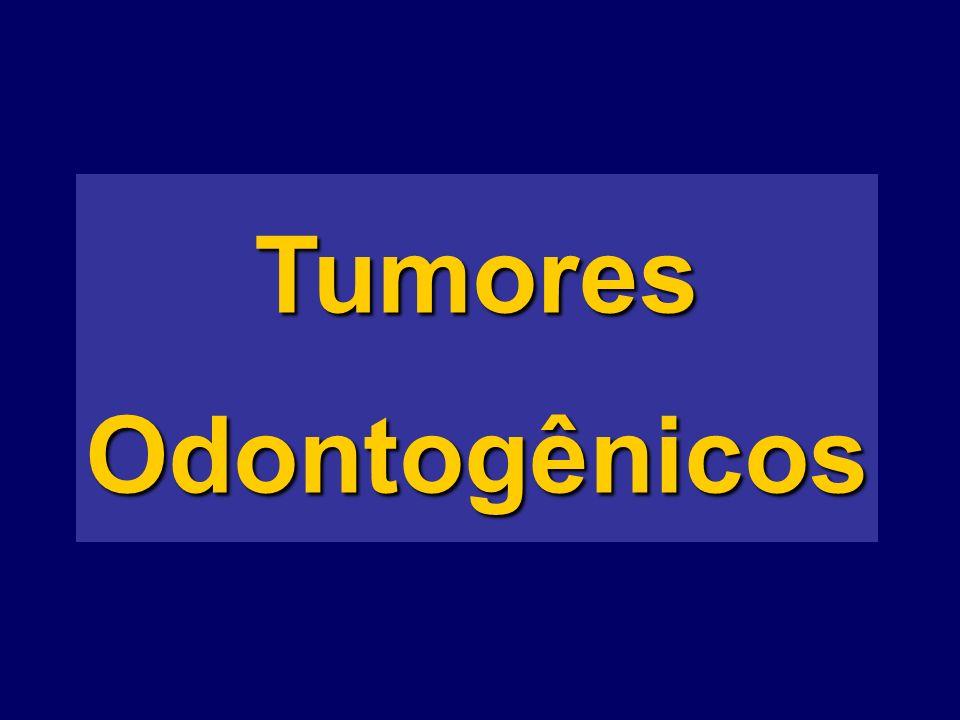 TumoresOdontogênicos