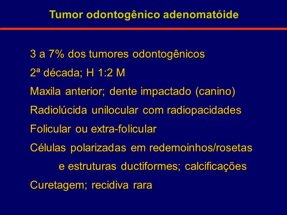 3 a 7% dos tumores odontogênicos 2ª década; H 1:2 M Maxila anterior; dente impactado (canino) Radiolúcida unilocular com radiopacidades Folicular ou e