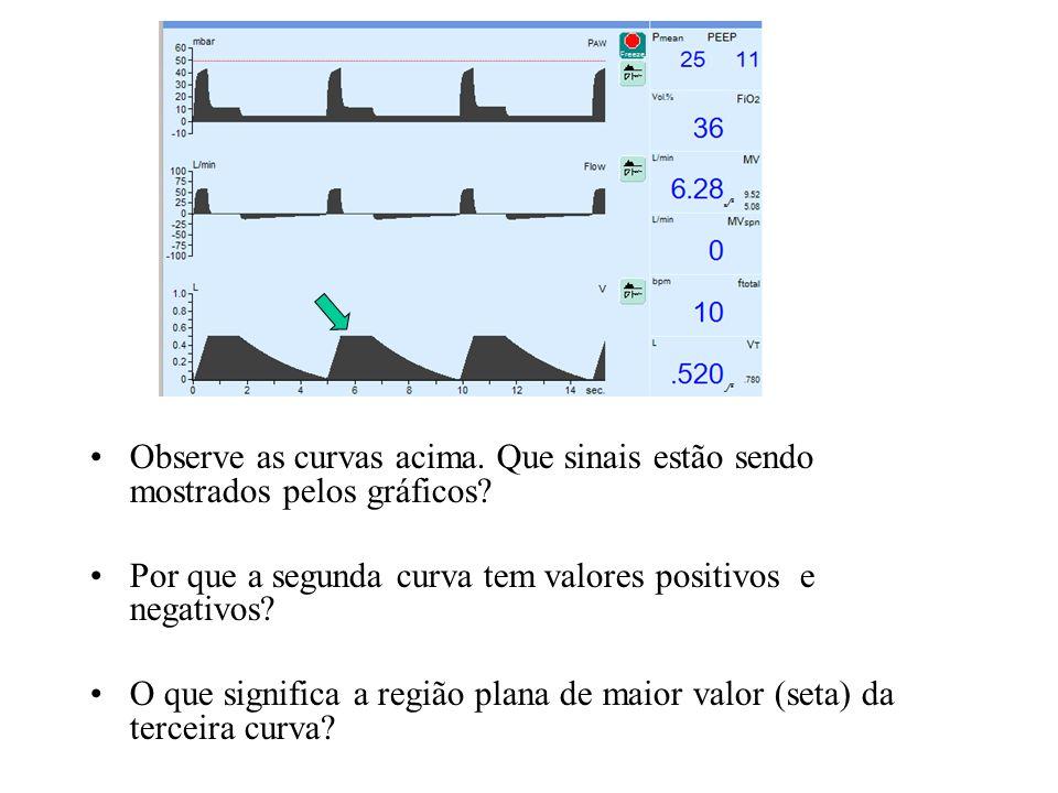 Observe as curvas acima. Que sinais estão sendo mostrados pelos gráficos? Por que a segunda curva tem valores positivos e negativos? O que significa a
