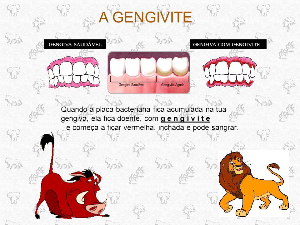 A GENGIVITE GENGIVA SAUDÁVELGENGIVA COM GENGIVITE g e n g i v i t e Quando a placa bacteriana fica acumulada na tua gengiva, ela fica doente, com g e n g i v i t e e começa a ficar vermelha, inchada e pode sangrar.