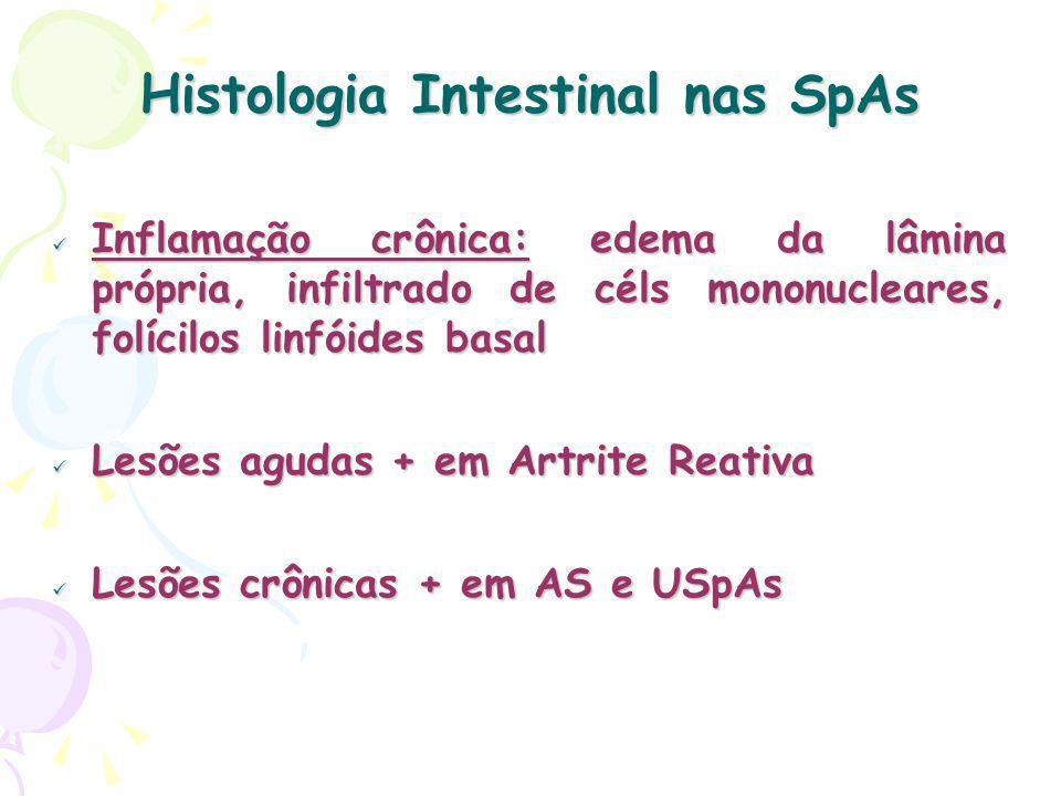 Histologia Intestinal nas SpAs Inflamação crônica: edema da lâmina própria, infiltrado de céls mononucleares, folícilos linfóides basal Inflamação crônica: edema da lâmina própria, infiltrado de céls mononucleares, folícilos linfóides basal Lesões agudas + em Artrite Reativa Lesões agudas + em Artrite Reativa Lesões crônicas + em AS e USpAs Lesões crônicas + em AS e USpAs