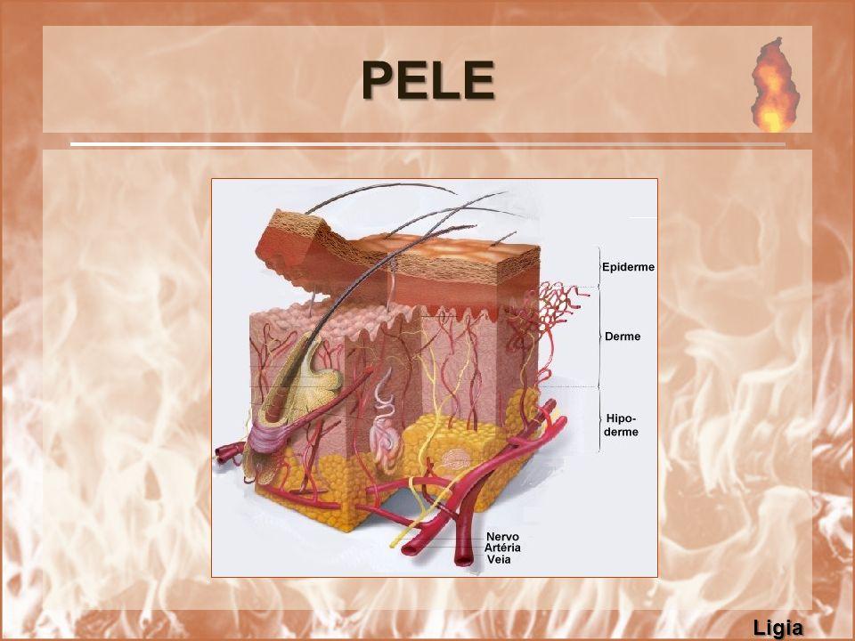 QUEIMADURAS São lesões coagulativas, que desnaturam e coagulam as proteínas dos tecidos, envolvendo diversas camadas do corpo (derme, epiderme, músculos, ossos, órgãos internos...) Grande Queimado: é a vítima com extensa lesão parcial ou total da derme.