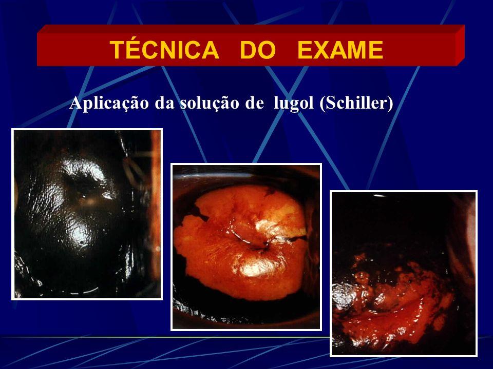 TÉCNICA DO EXAME Aplicação da solução de lugol (Schiller)