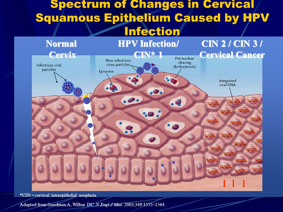 Spectrum of Changes in Cervical Squamous Epithelium Caused by HPV Infection *CIN = cervical intraepithelial neoplasia Adapted from Goodman A, Wilbur D