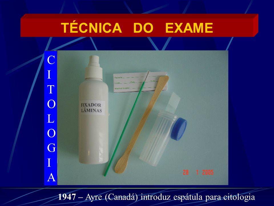 TÉCNICA DO EXAME CITOLOGIACITOLOGIA 1947 – Ayre (Canadá) introduz espátula para citologia