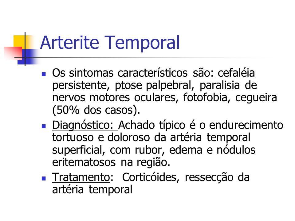 Arterite Temporal Os sintomas característicos são: cefaléia persistente, ptose palpebral, paralisia de nervos motores oculares, fotofobia, cegueira (5