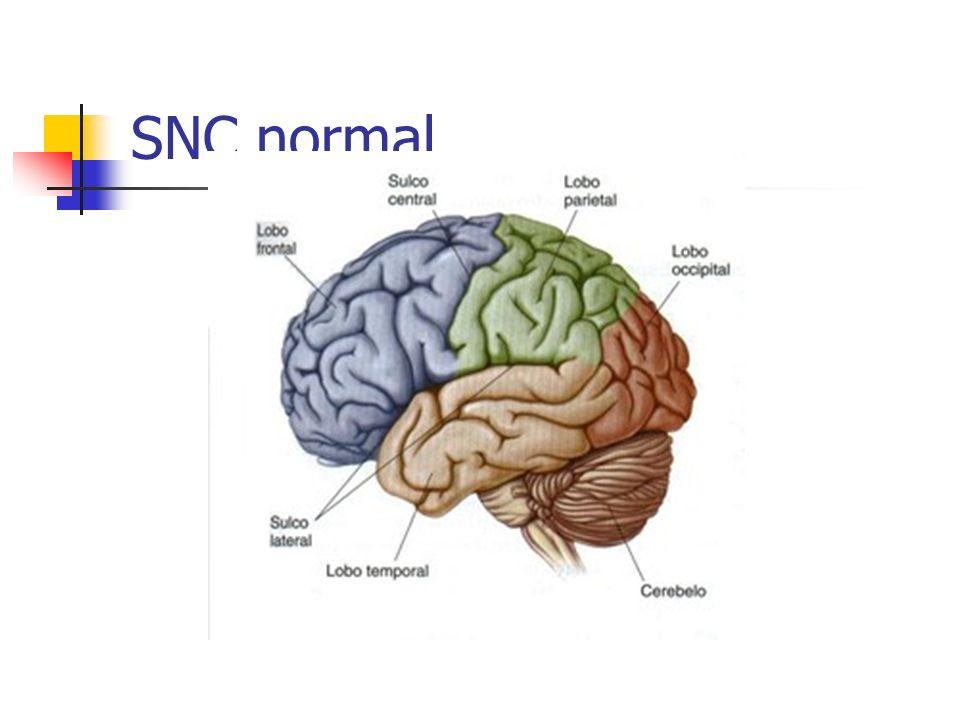 Doenças cérebro-vasculares (DCV) Definição: Anormalidades no encéfalo decorrentes de alterações vasculares.