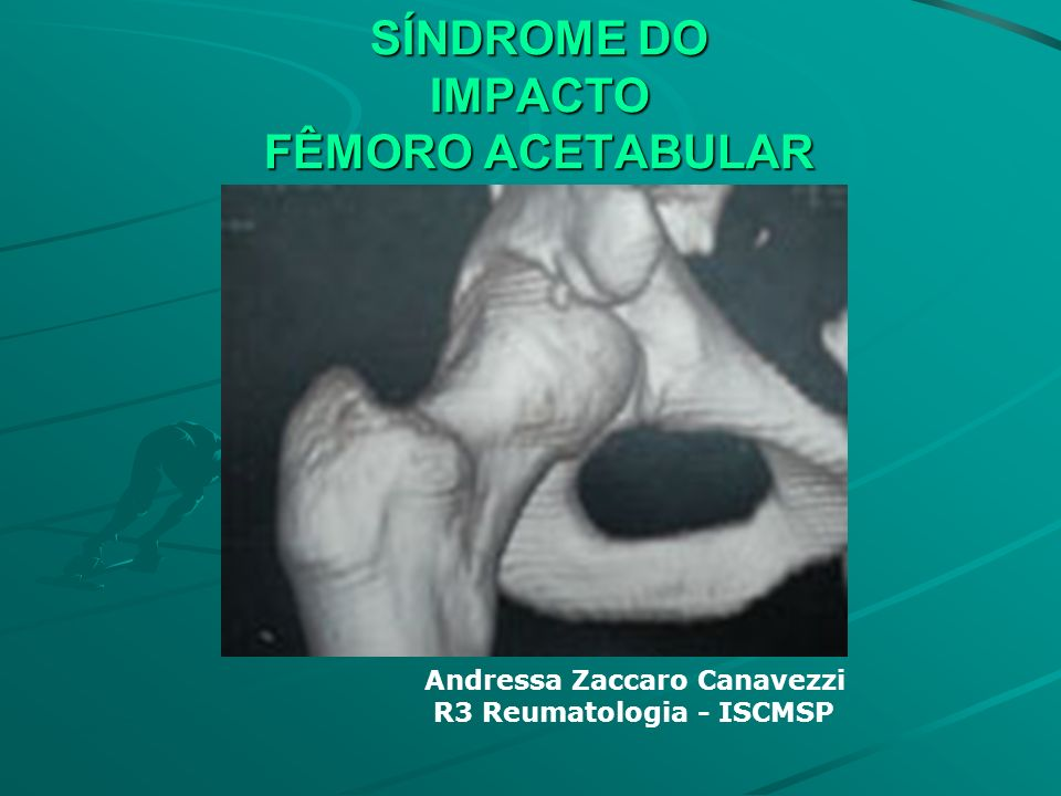 SÍNDROME DO IMPACTO FÊMORO ACETABULAR Andressa Zaccaro Canavezzi R3 Reumatologia - ISCMSP
