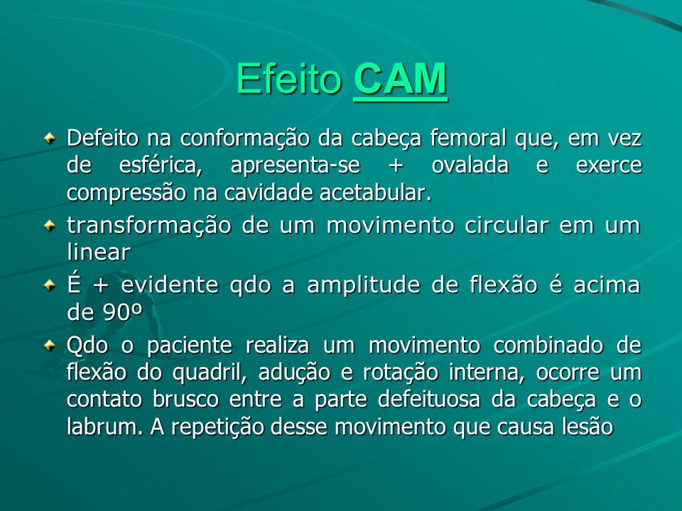 Efeito CAM Defeito na conformação da cabeça femoral que, em vez de esférica, apresenta-se + ovalada e exerce compressão na cavidade acetabular. transf