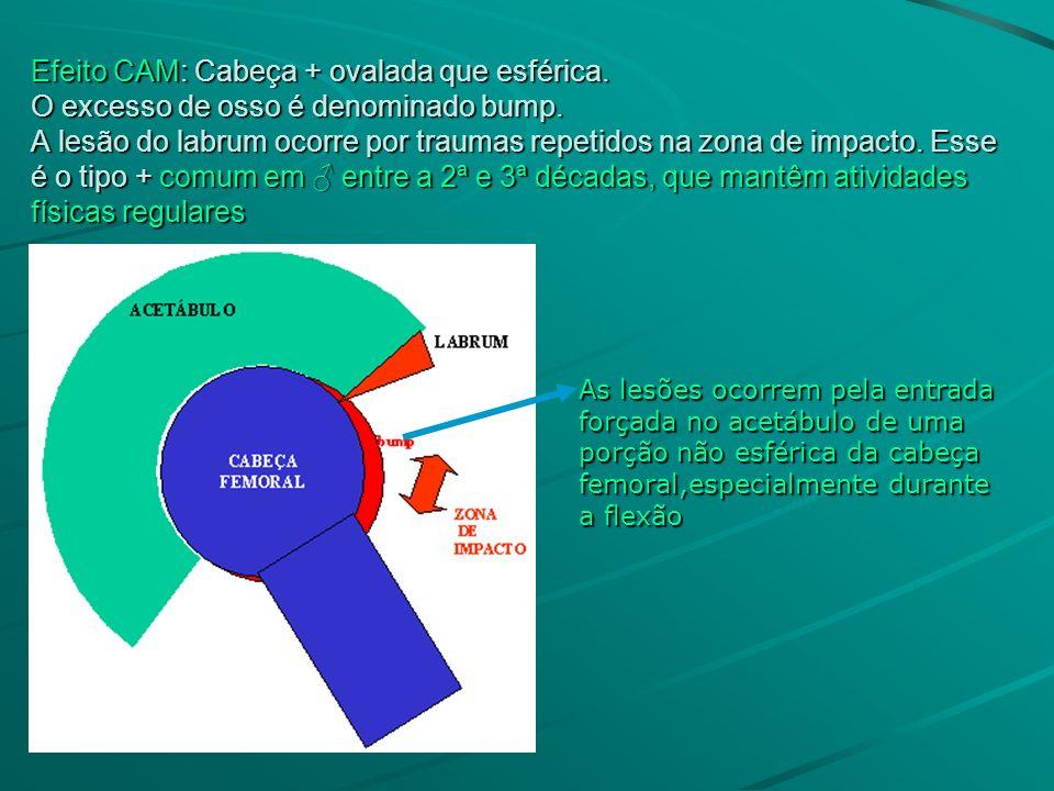 Efeito CAM: Cabeça + ovalada que esférica. O excesso de osso é denominado bump. A lesão do labrum ocorre por traumas repetidos na zona de impacto. Ess