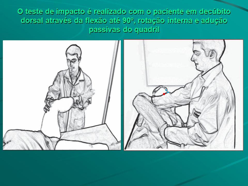 O teste de impacto é realizado com o paciente em decúbito dorsal através da flexão até 90º, rotação interna e adução passivas do quadril