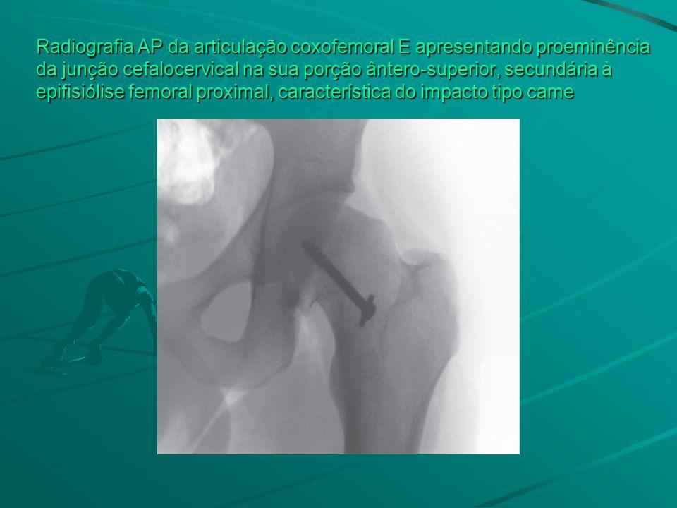 Radiografia AP da articulação coxofemoral E apresentando proeminência da junção cefalocervical na sua porção ântero-superior, secundária à epifisiólis