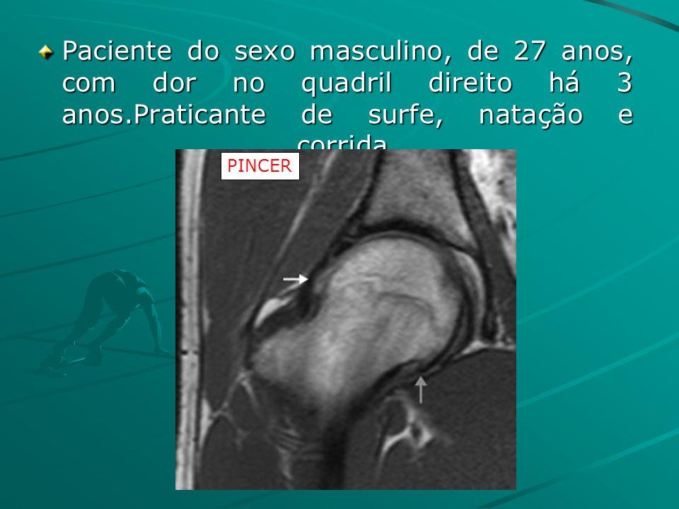 Paciente do sexo masculino, de 27 anos, com dor no quadril direito há 3 anos.Praticante de surfe, natação e corrida. PINCER