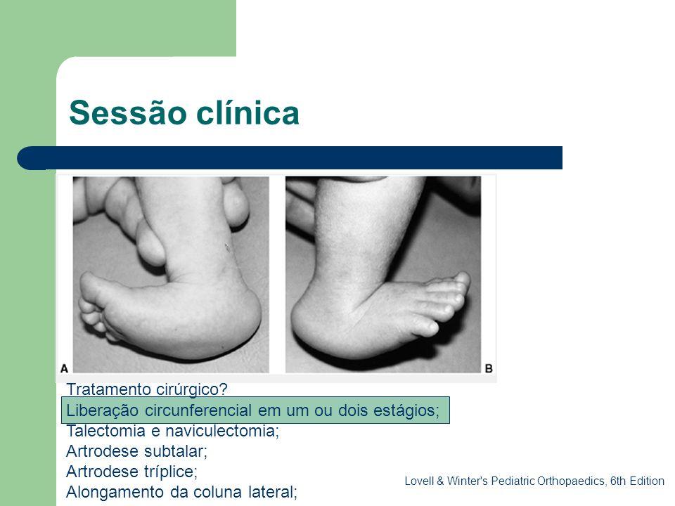 Sessão clínica. Tratamento cirúrgico? Liberação circunferencial em um ou dois estágios; Talectomia e naviculectomia; Artrodese subtalar; Artrodese trí