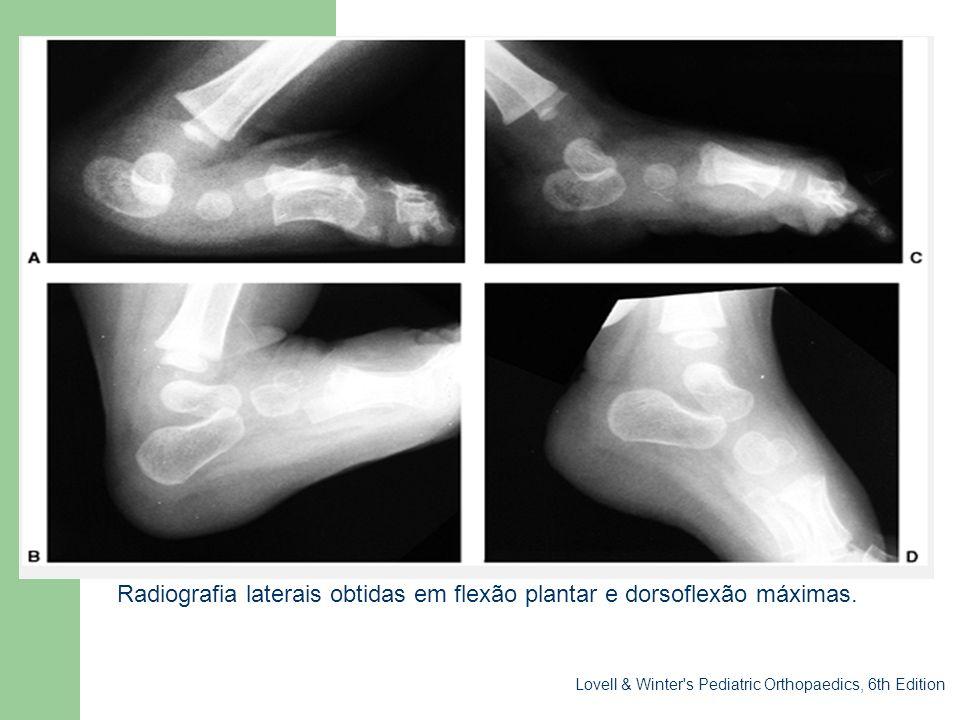 Sessão clínica Radiografia laterais obtidas em flexão plantar e dorsoflexão máximas. Lovell & Winter's Pediatric Orthopaedics, 6th Edition