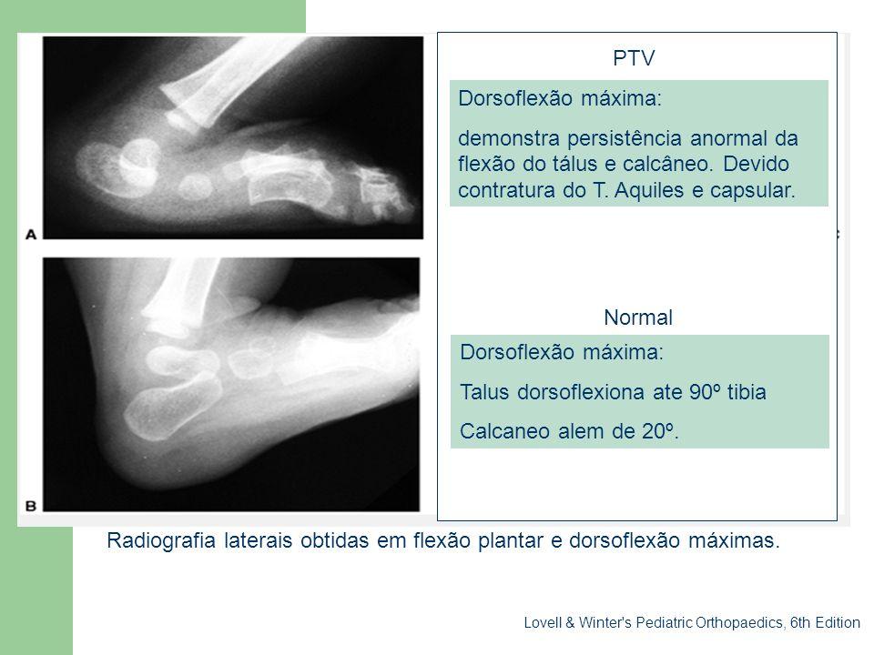 Sessão clínica Radiografia laterais obtidas em flexão plantar e dorsoflexão máximas. Dorsoflexão máxima: demonstra persistência anormal da flexão do t